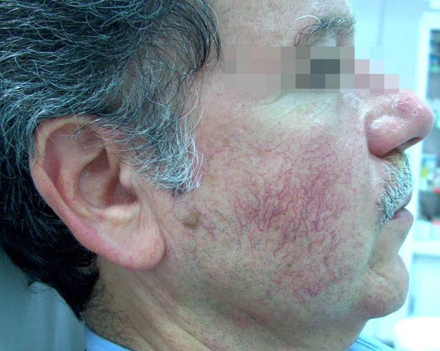 Dimitris Ι  Kapetanakis - Dermatologist / Venereologist